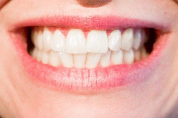 10 tips om een witte glimlach te krijgen en te houden