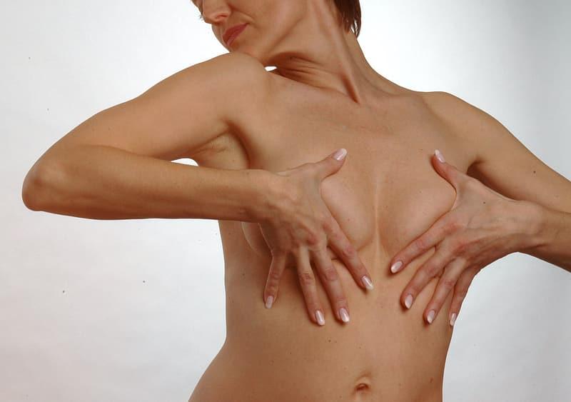 Redenen voor een borstvergroting